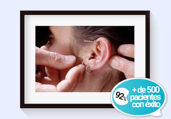 sesiones-hipnosis-acupuntura-banda-gastrica-n1